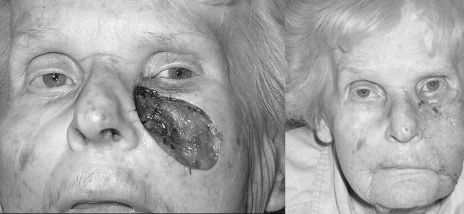90 year old with post MOHs defect after recurrent squamous cell cancer initially treated by rafiotherapy. This large defect required reconstruction with a cheek rotation flap to prevent lower lid malposition