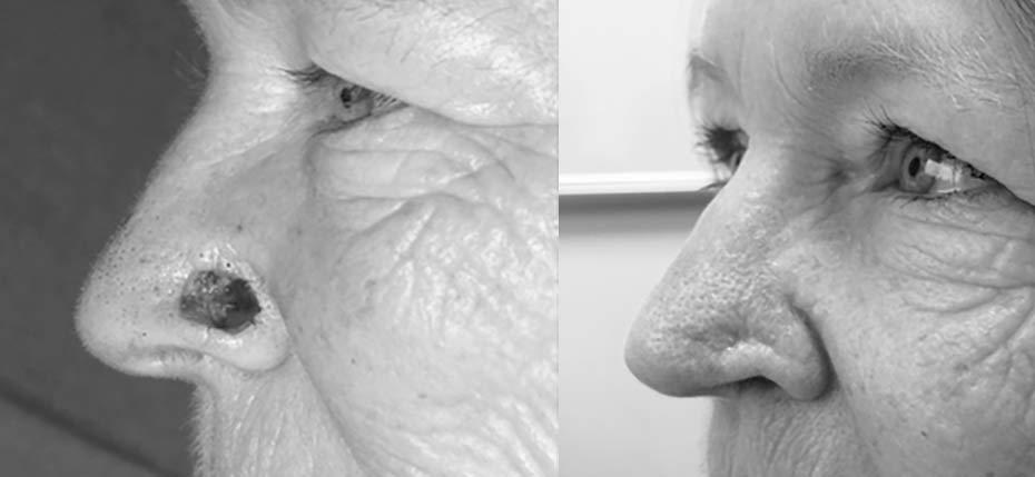 64 year old lady with a post MOHs defect on her left nasal alar. This was reconstructed with a local flap