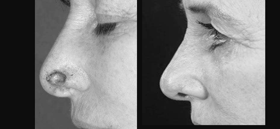 55 year old lady with a post MOHs defect on her left nasal alar. This was reconstructed with a local flap (lateral view)