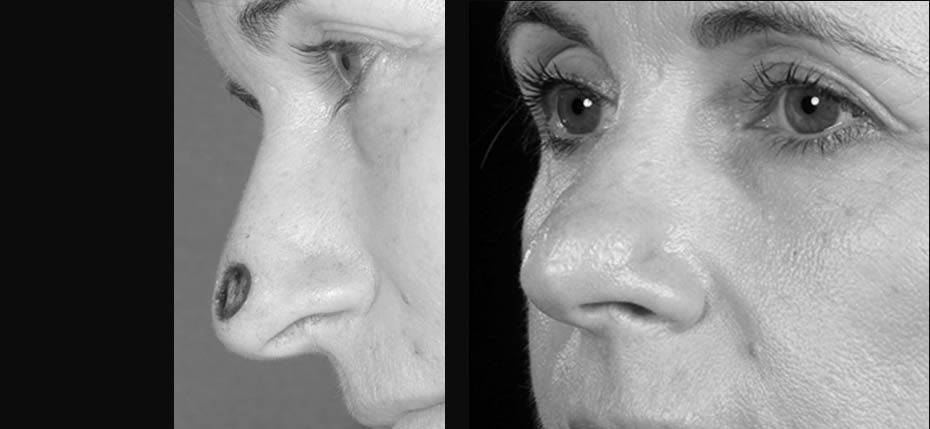 55 year old lady with a post MOHs defect on her left nasal alar. This was reconstructed with a local flap (3/4 view)