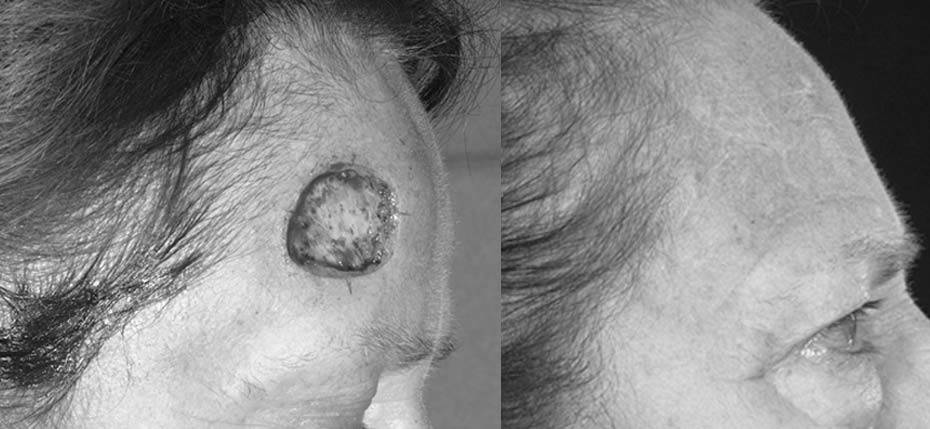 69 year old with post MOHs defect on her forehead following removal of basal cell cancer and reconstruction with a full thickness skin graft