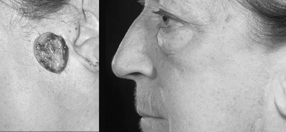 69 year old with post MOHs defect on her left cheek following removal of basal cell cancer and reconstruction with a facelift direct closure