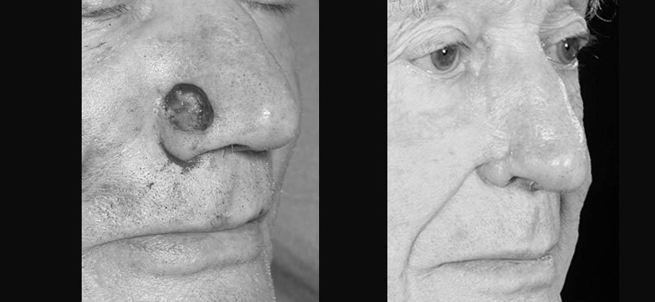87 year old with post MOHs defect on right nasal alar following removal of basal cell cancer. This was reconstructed with a single stage nasolabial flap