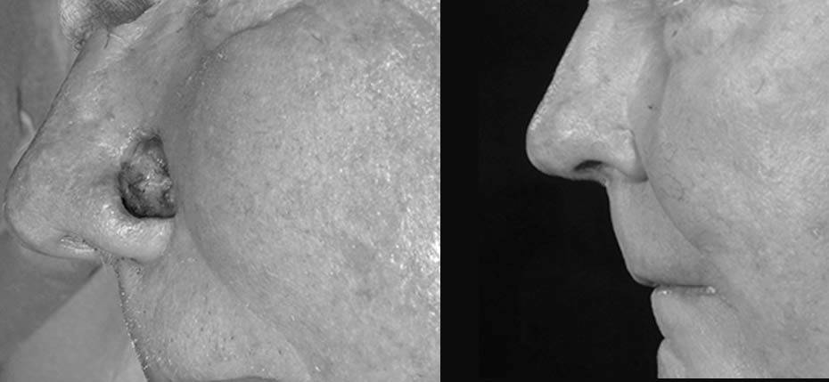 70 year old with post MOHs defect on his left nasal alar following removal of basal cell cancer. This was reconstructed with a cheek advancement flap