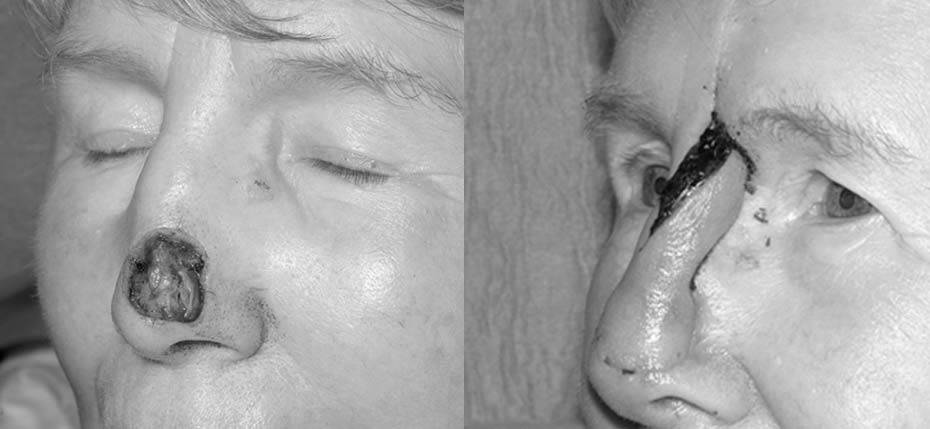 75 year old with post MOHs defect on her nasal tip following removal of basal cell cancer. The cartilages were exposed and this necessitated reconstruction with a forehead flap (1st Stage).