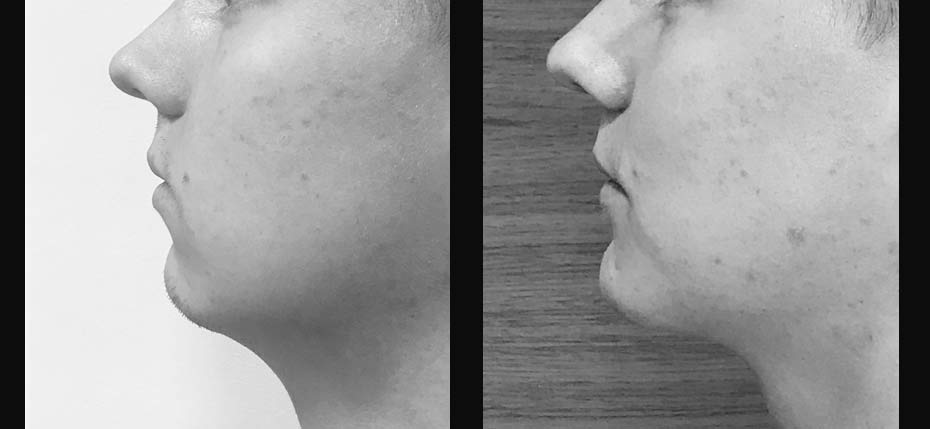 Young gentleman complaining of sagging neck skin treated with an advancement genioplasty to restore facial proportions.