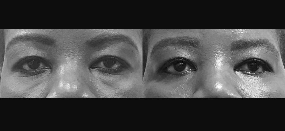 44 year old afrocaribbean lady with lower eyelid fat herniation treated with a bilateral lower lid blepharoplasty