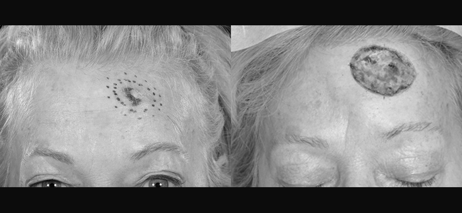 Lady presenting with morphoeic BCC on her forehead requiring MOHs surgery. These photos show her lesion and the subsequent defect.
