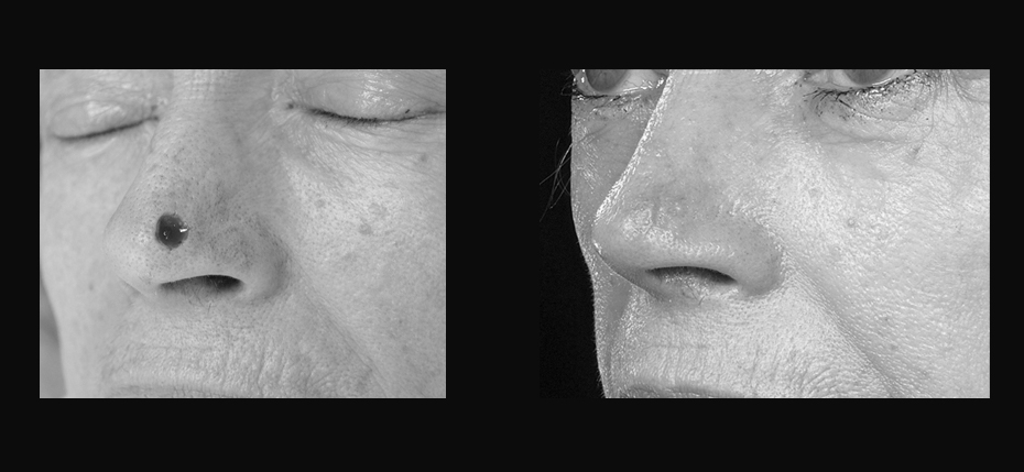 Lady with a post MOHs defect on her left nasal alar. This was reconstructed with a local flap (3/4 view)