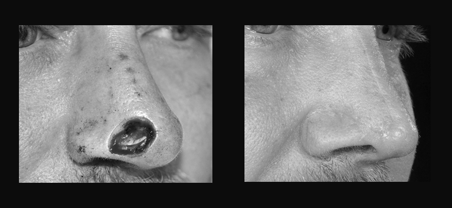Young man with a post MOHs defect on his right nasal alar. This was reconstructed with a dorsal nasal local flap (3/4 view)