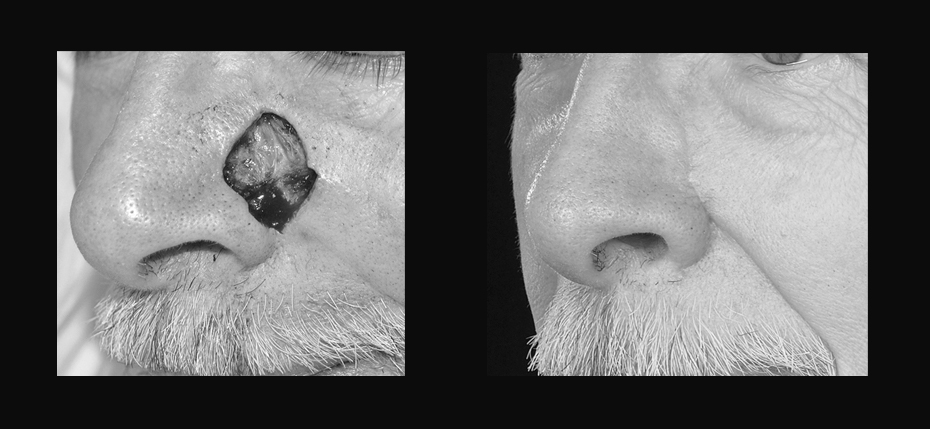 Elderly man with a post MOHs defect on his left nasal sidewall and cheek. This was reconstructed with a cheek advancement flap (3/4 view)