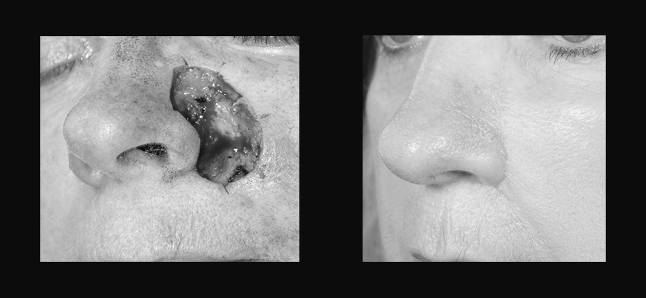 Young lady with a post MOHs defect on her left nasal sidewall/alar and cheek. This was reconstructed with a cheek advancement flap (3/4 view)