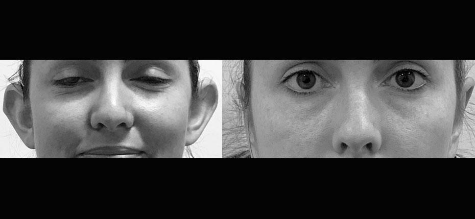 facial-surgery-2019-8.1