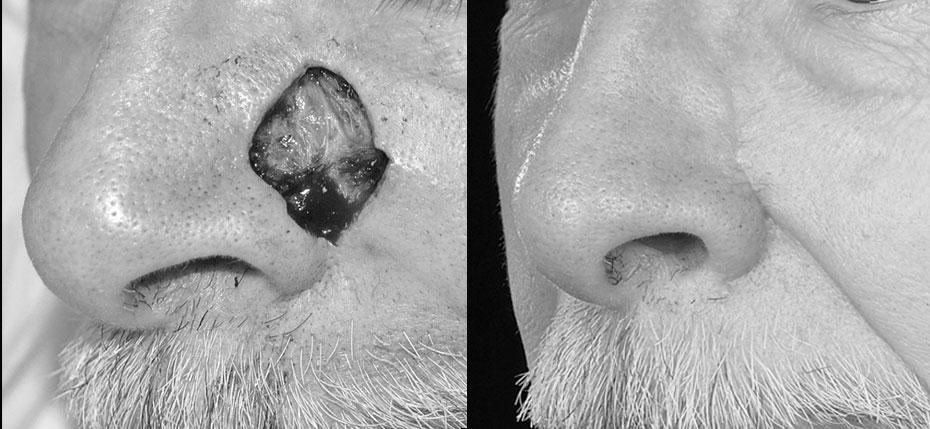 facial-surgery-2019-8.10