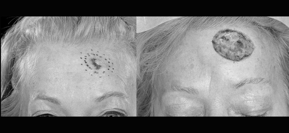 facial-surgery-2019-8.12