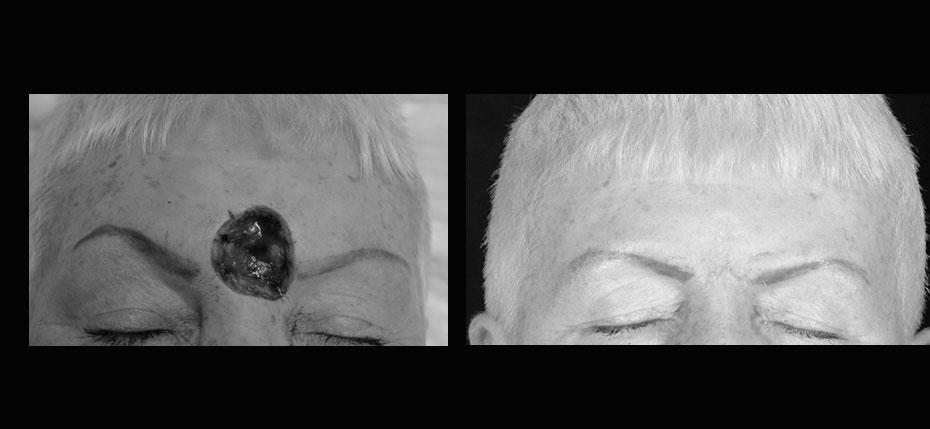 facial-surgery-2019-8.15
