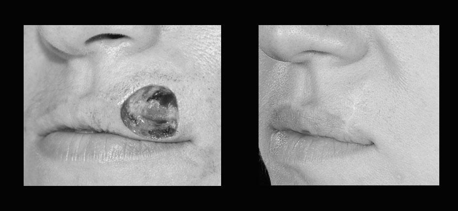 facial-surgery-2019-8.16