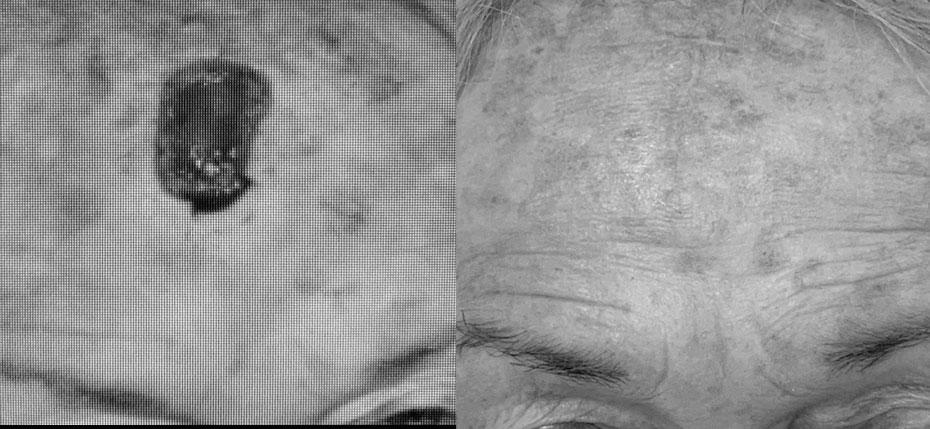facial-surgery-2019-8.2