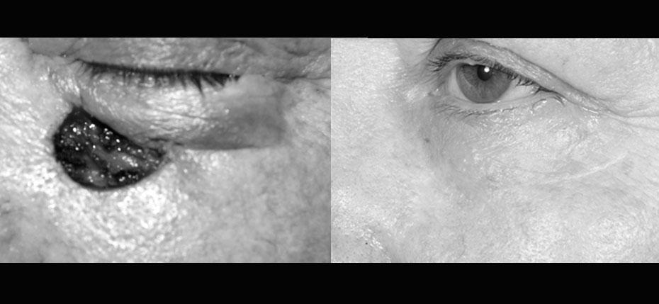 facial-surgery-2019-8.3