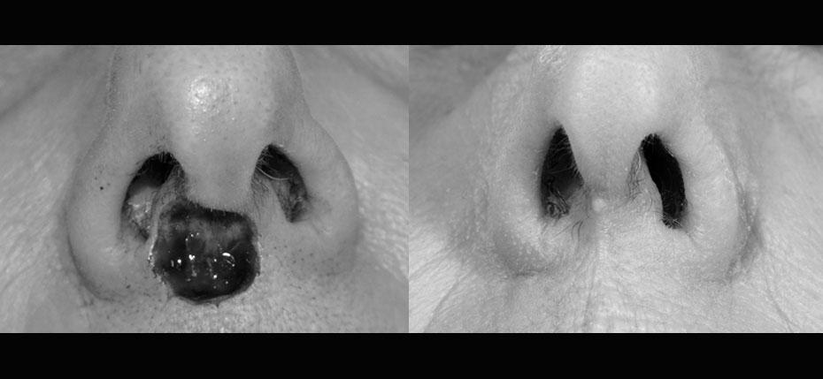 facial-surgery-2019-8.5