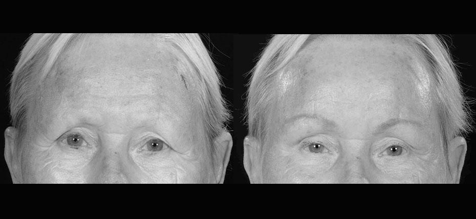 facial-surgery-2019-8.6
