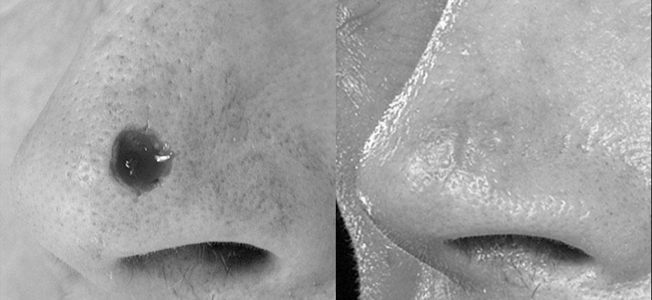 facial-surgery-2019-8.8