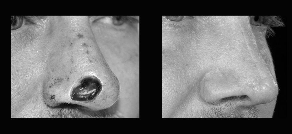 facial-surgery-2019-8.9