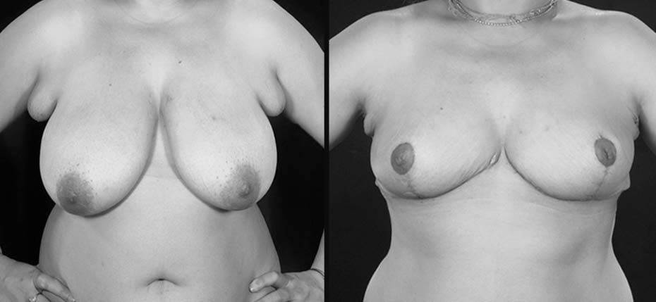 34 year old with large breasts who underwent a breast reduction