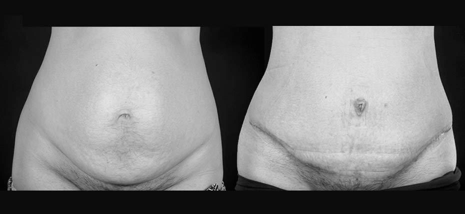 44 year old lady with a paraumbilical hernia and lower abdominal skin/fat excess reconstructed through a full abdominoplasty approach (frontal view)