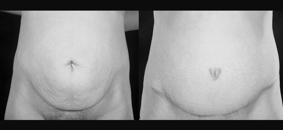34 year old with abdominal stretch marks and overhanging skin treated with a full abdominoplasty (frontal view)