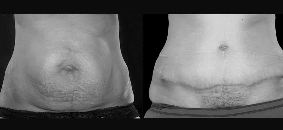 body-contouring-2017-7