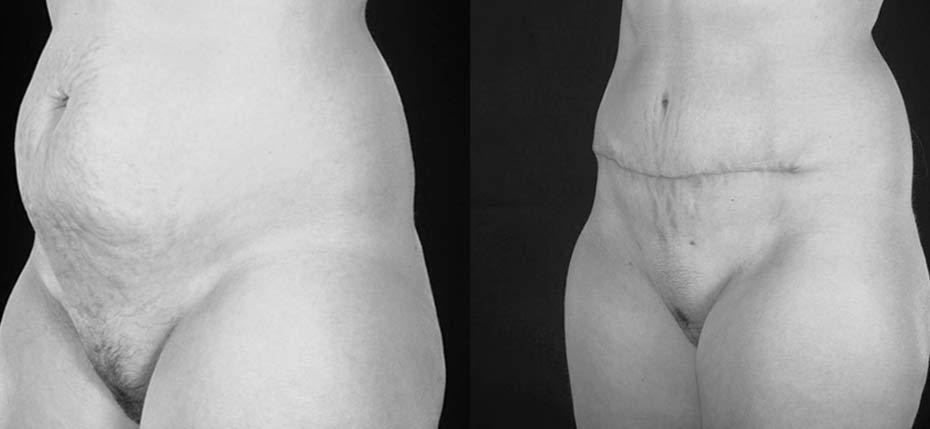 35 year old lady with excess skin/fat after multiple pregnancies. The stretch marks above and below the umbilicus were also corrected through this high scar abdominoplasty approach