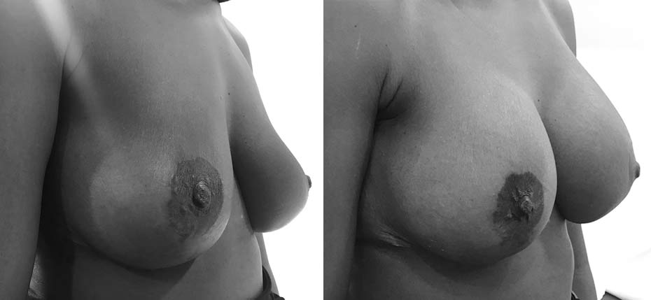 45 year old lady following submuscular breast augmentation