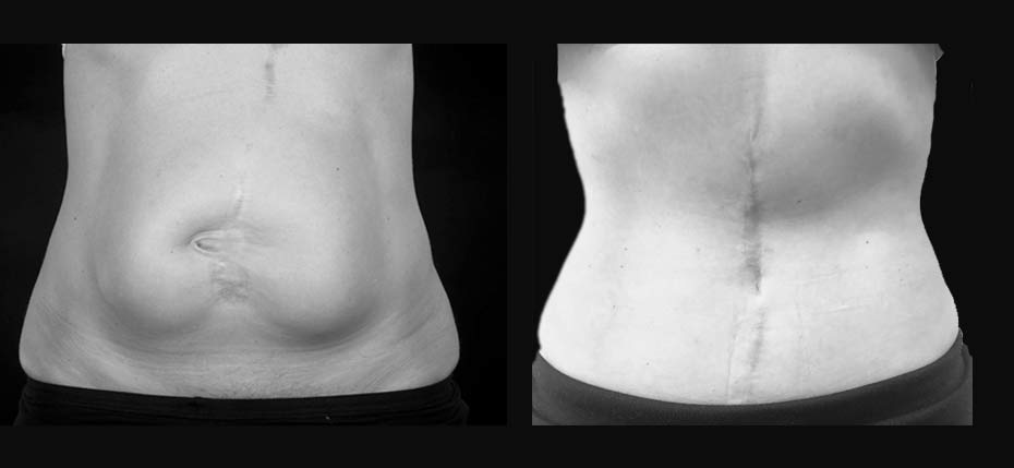 40 year old lady with ventral incisional hernia requiring abdominal wall reconstruction through direct vertical abdominoplasty approach (frontal view)