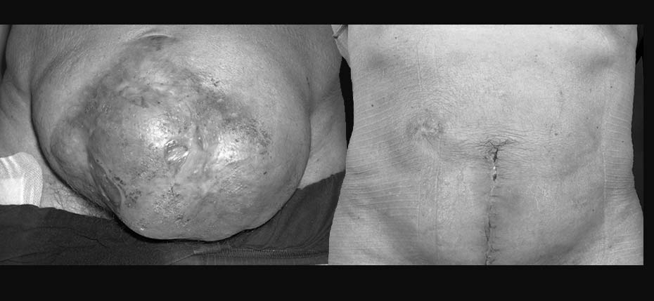 Gentleman with large laparostomy/incisional hernia and skin graft healing requiring abdominal wall reconstruction with acellular dermal matrix, component separation and direct vertical abdominoplasty approach (frontal view)