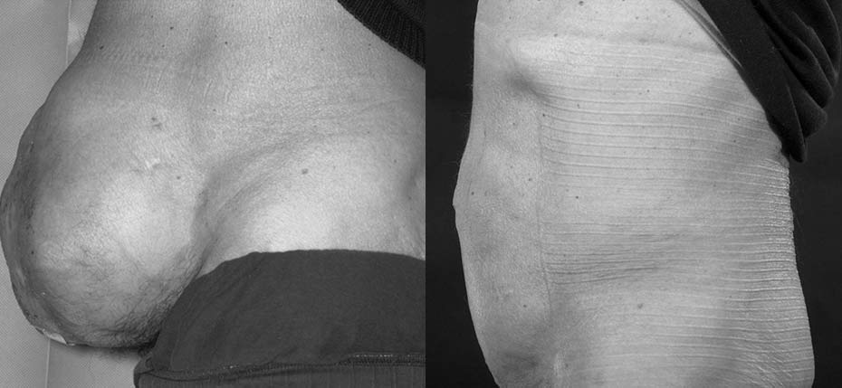 Gentleman with large laparostomy/incisional hernia and skin graft healing requiring abdominal wall reconstruction with acellular dermal matrix, component separation and direct vertical abdominoplasty approach (lateral view)