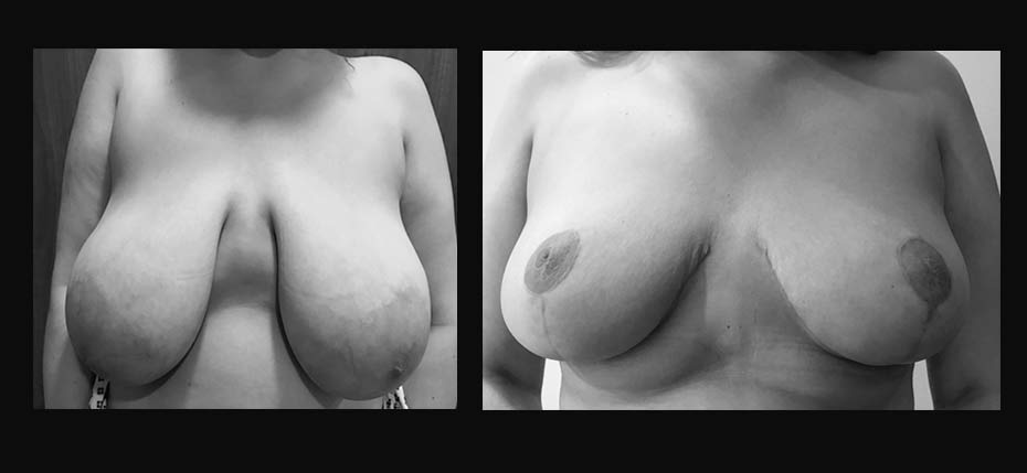 23 year old woman with macromastia and grade 3 breast ptosis treated with a bilateral breast reduction (frontal view)