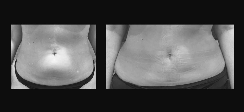 Lady following liposuction to lower abdominal wall