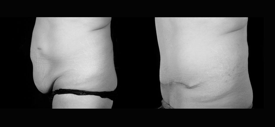 body-contouring-2019-7