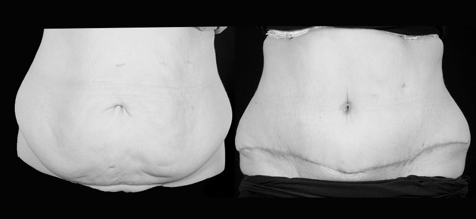 body-contouring-2019-8