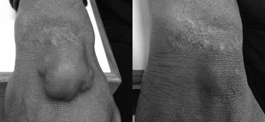 54 year old man with a dorsal wrist ganglion that required aspiration
