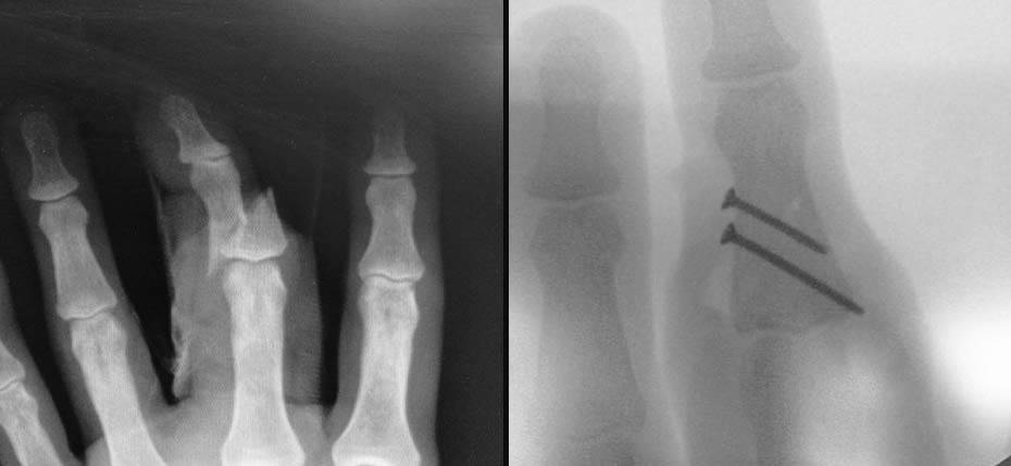 34 year old man with finger fracture fixed with internal screws
