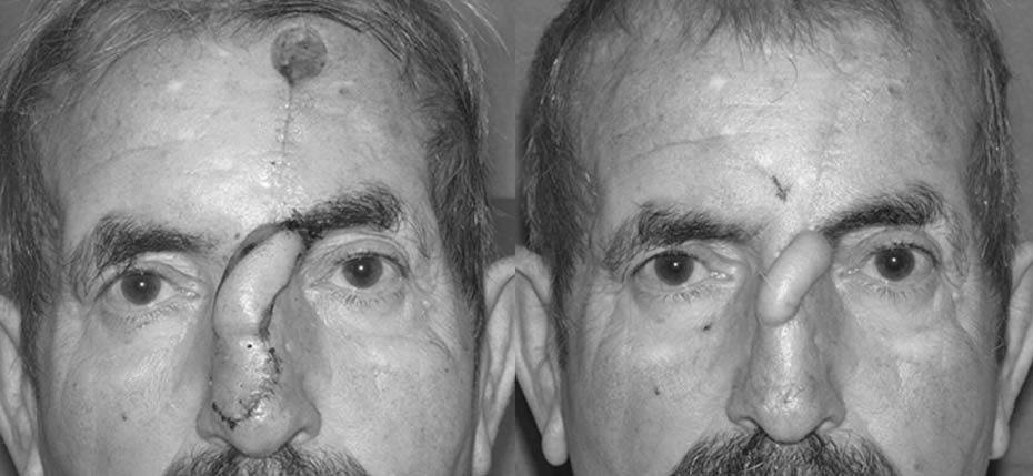 65 year old with post MOHs defect following removal of basal cell cancer and reconstruction with a forehead flap (awaiting 2nd Stage)