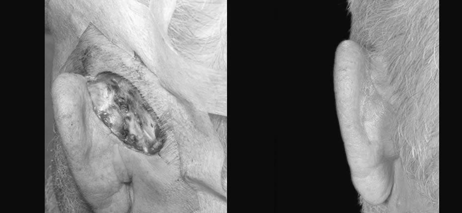 reconstructive-surgery-2017-7