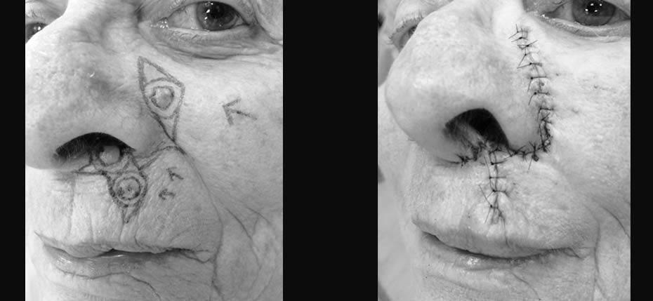 reconstructive-surgery-2017-9