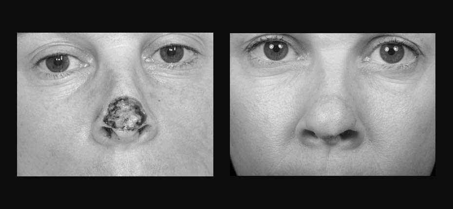 Young Lady with a post MOHs defect reconstructed with a forehead flap