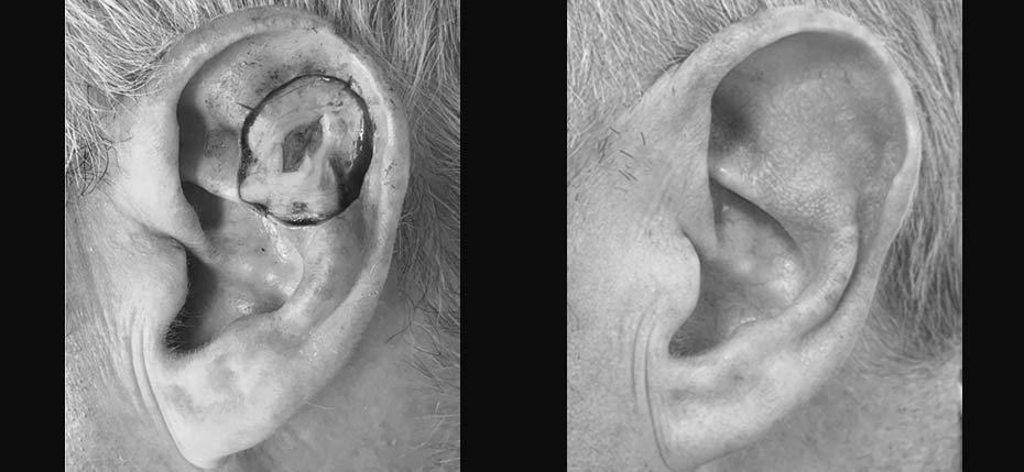 Gentleman with a BCC on his left ear removed with MOHs and reconstructed with a 'trapdoor' flap