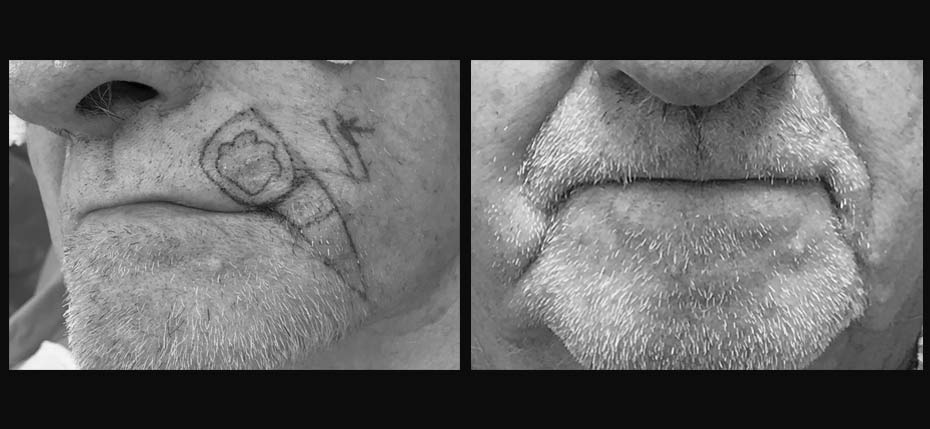 Gentleman with a BCC on his upper lip removed and reconstructed with V-Y flap