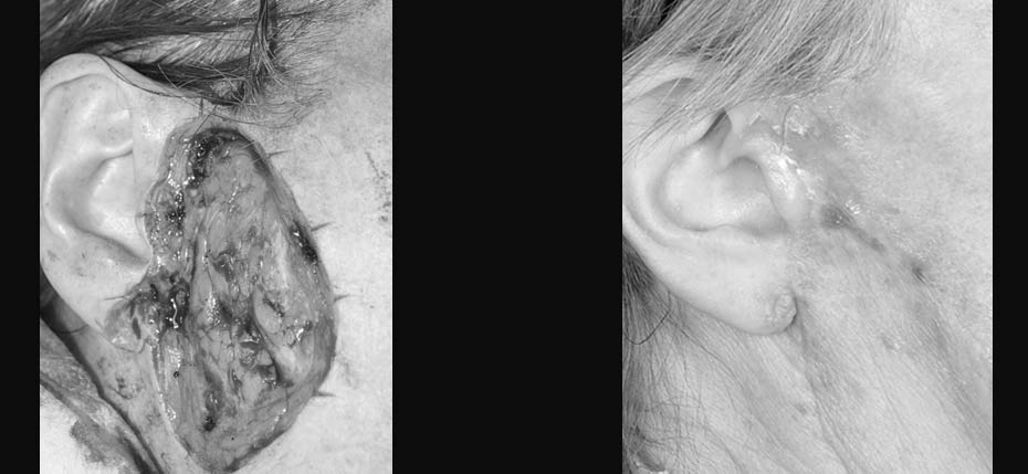 Lady with a post MOHs defect reconstructed with a cervicofacial flap