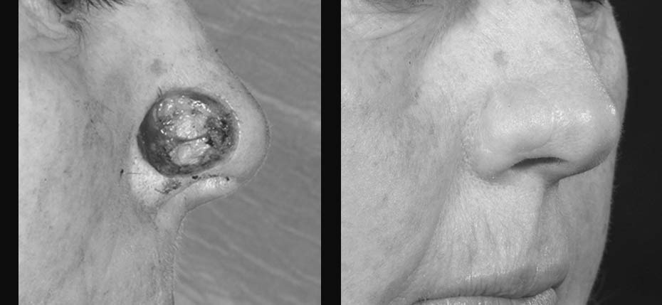 Lady with a post MOHs defect reconstructed with a forehead flap